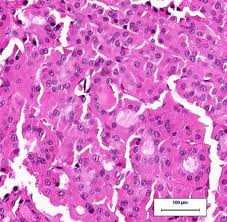 Follicular Cancer