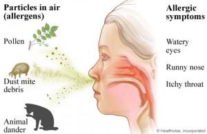 Seasonal Allergic Rhinitis 300x195 Seasonal Allergic Rhinitis