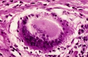 Subacute Granulomatous Thyroiditis