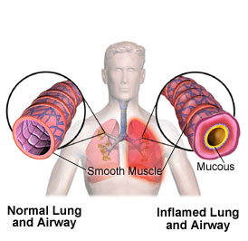 Asthma Attacks How They Occur Asthma