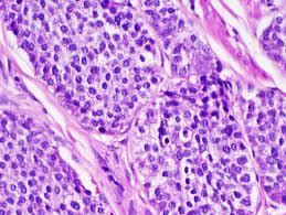 Carcinoid (Cancer)