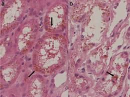 Paroxysmal Nocturnal Hemoglobinuria1 Paroxysmal Nocturnal Hemoglobinuria