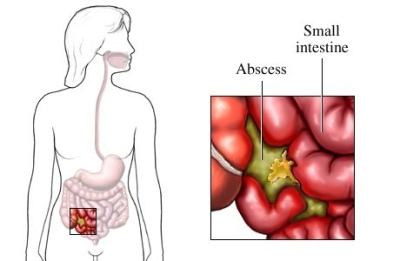 Abdominal Abscesses Types of Abdominal Abscesses
