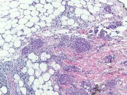 Erithema Nodosum