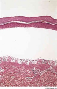 Porphyria Cutanea Tarda 191x300 Porphyria Cutanea Tarda