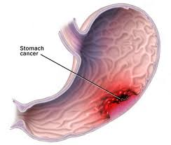 Stomach Cancer Stomach Cancer