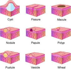 Skin Lesions Skin Lesions